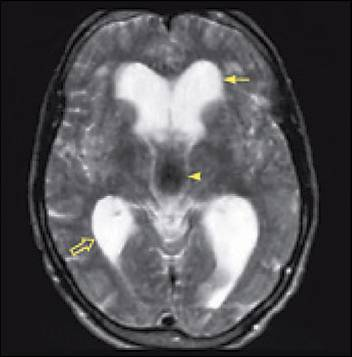 normal pressure hydrocephalus nph, houston, texas, united states
