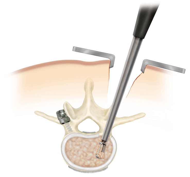 cleaning disc space, minimally invasive spine surgery