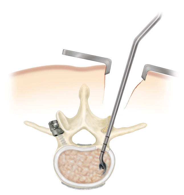 minimall invasive surgery
