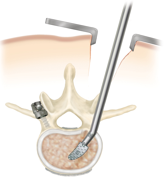 wiltse approach, minimally invasive spine surgery