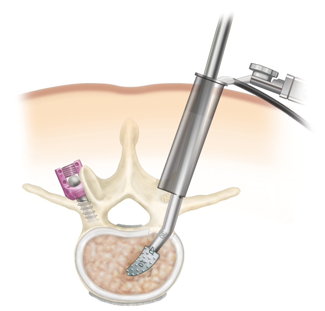 minimally invasive surgery of the spine