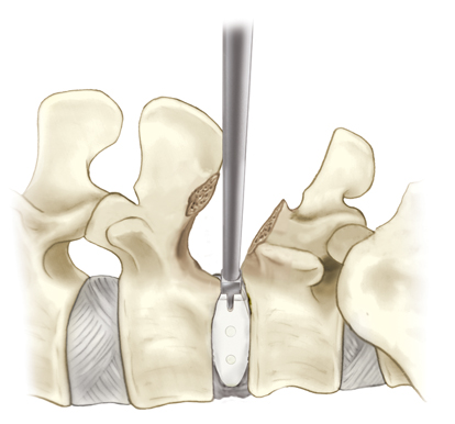 minimally invasive spine surgery, interbody graft