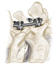 pedicle screws, spine surgery