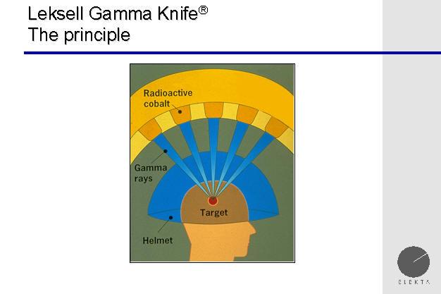 gamma knife  gammaknife  radiosurgery  gamma knife