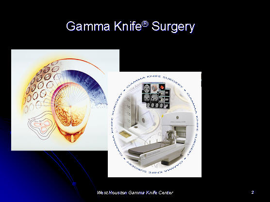 Facial gamma knife neuroma