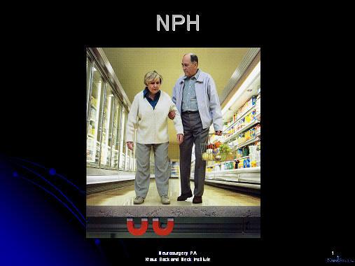 nph, normal pressure hydrocephalus, hydrocephalus, vp ...