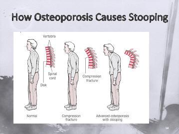osteoporosis, osteoporotic, bone density,fractures ...