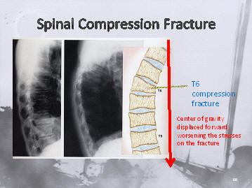 osteoporotic compression fracture of the spine causes kyphosis, increasing risk to adjacent levels, Houston, Texas