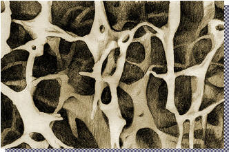 osteoporosis bone density, osteoporotic bone