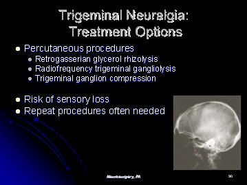 trigeminal neuralgia additional treatment options