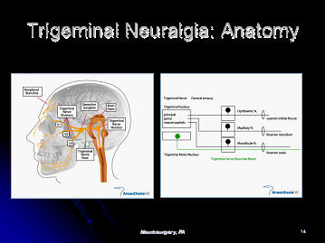 trigeminal neuralgia, nerve supply