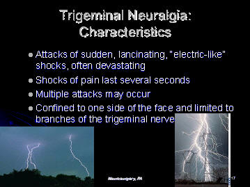 lancinating shock like electric pain of trigeminal neuralgia, houston, tx, texas, usa